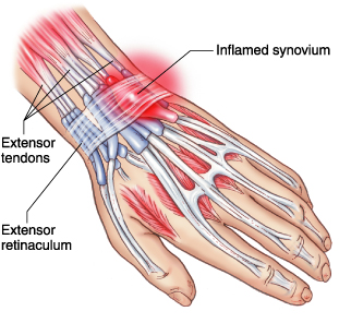 How to Fix Common Weightlifting Injuries Part 1: Tendinitis
